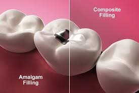 silver-fillings-vs-white-fillings
