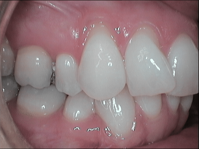 gum recession and crooked teeth