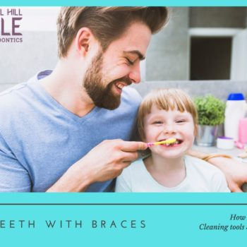 cleaning kids' teeth with braces