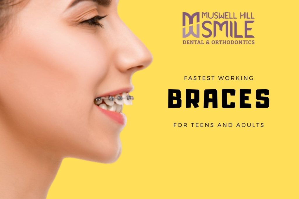 braces work the fastest for teens and adults