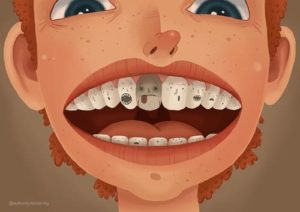 What is 'dead-tooth'?