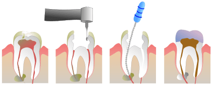 dead tooth root canal