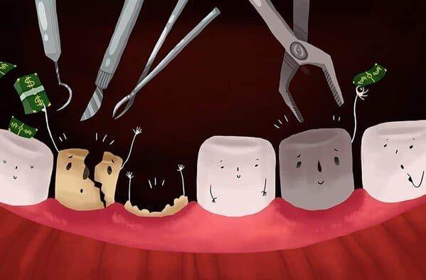 tooth extraction for dead tooth