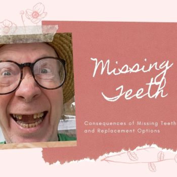 Missing teeth consequences and replacement options